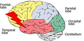 Supplements for brain repair